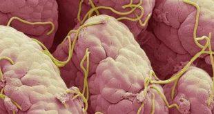 علاج الديدان الدبوسية , ماهي الديدان الدبوسيه كيفيه علاجها