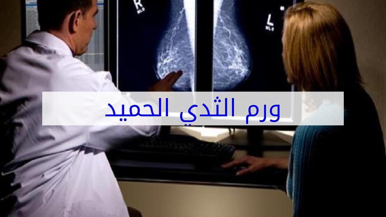 صورة ورم الثدي الحميد , اعراض اسباب اورام الثدي الحميده