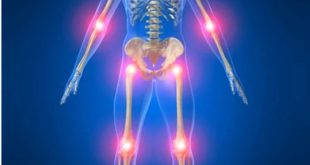 صور ماهي اعراض هشاشة العظام , ازاي اعرف انه عندي هشاشة عظام