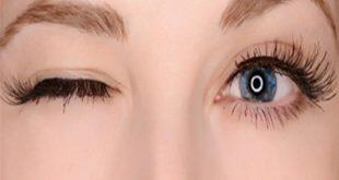صور اسباب رفة العين , سبب حدوث تشنج الجفن او رفة العين
