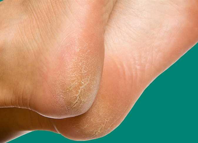 صورة كيفية علاج تشقق القدمين , وصفات طبيعيه فعال لشقوق الاقدام