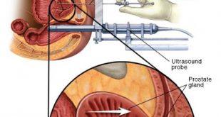 علاج سرطان البروستات , الامراض التي تصيب الرجال