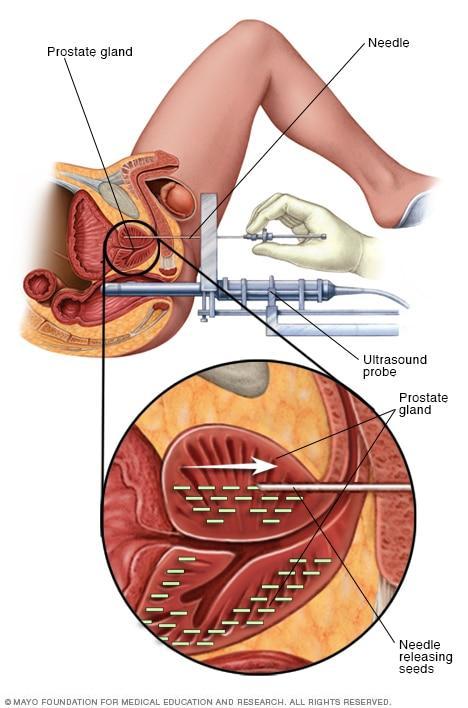 صورة علاج سرطان البروستات , الامراض التي تصيب الرجال