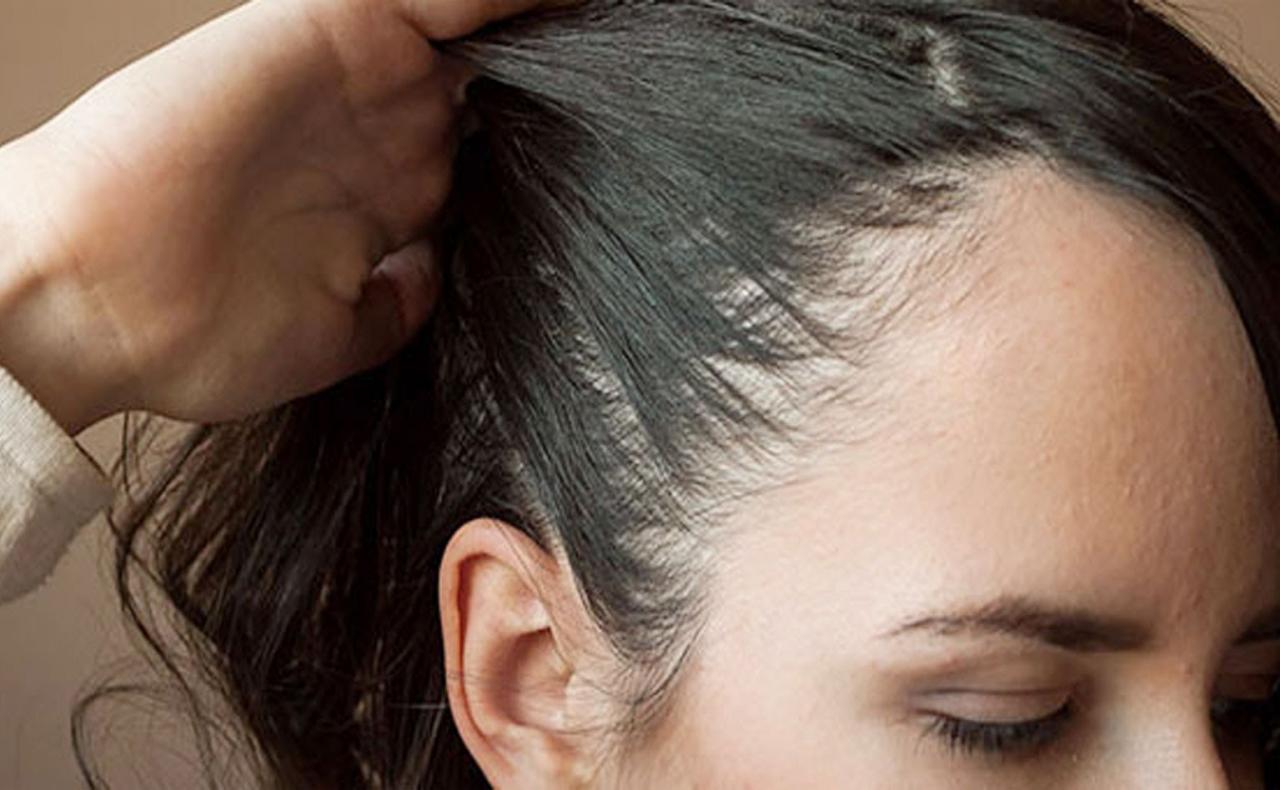 صورة علاج فراغات الشعر , تكثيف الشعر في اماكن الفراغات بالراس