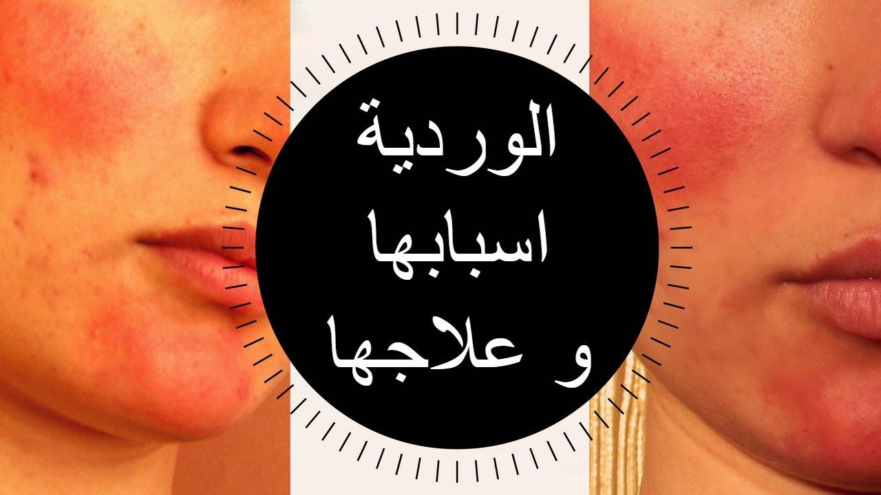 صور علاج النخالة الوردية بالاعشاب , ازاي تتخلص من مرض النخالة الوردية