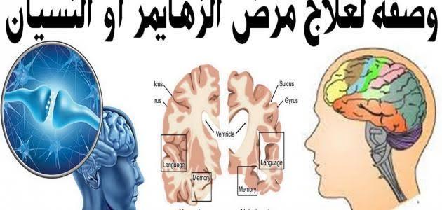 صورة علاج الزهايمر المبكر , ما هو الزهايمر و هل له علاج