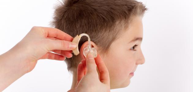 صورة علاج ضعف السمع عند الاطفال بالاعشاب , طفلي سمعه تقيل 2130 2