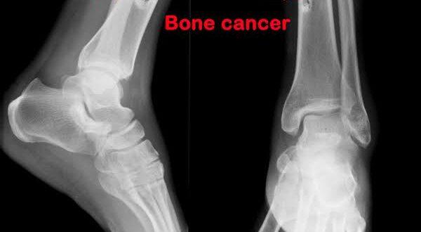 صورة اعراض سرطان القدم , علامات حدوث المرض و الكشف المبكر
