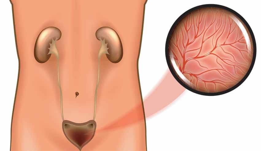 صورة الام المثانة عند الرجال , السبب الرئيسى لالم المثانه عند الرجال 3040 1