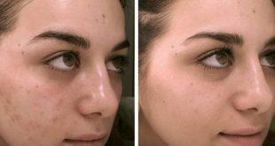 صورة البقع البنية في الوجه وعلاجها , عندي بقع في بشرتي