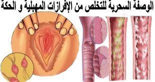 صورة كيف اتخلص من الافرازات المهبلية والرائحة الكريهة , اعاني من الافرازات كيفية التخلص منها