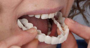 قشرة الاسنان التجميلية , فينيرلتجميل الاسنان