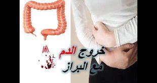 صورة اسباب خروج الدم مع البراز , مخاطر النزيف الشرجي