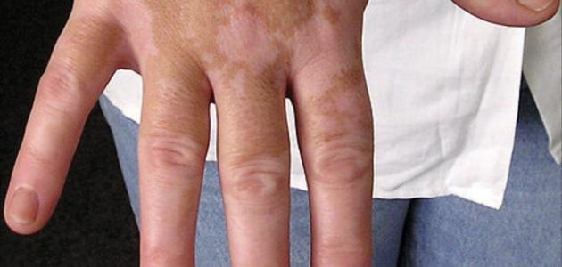 صورة احدث علاج للبهاق , امراض جلديةمزعجه واجدد وسائل علاجها
