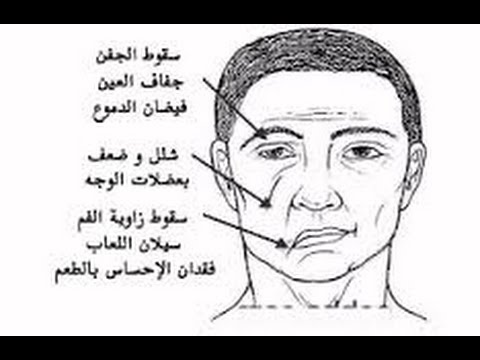 صورة اسباب الشلل النصفي , عوامل ظهور الشلل النصفى