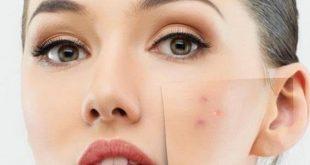 صورة وصفة سريعة لتبييض الوجه وازالة الحبوب , اجعلي بشرتك اكثر حيوية