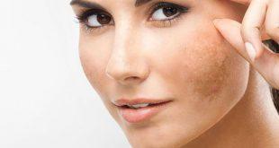 صورة وصفات لازالة الكلف , خلطات لمنع ظهور النمش علي الوجه