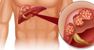 سرطان الكبد وعلاجه , مواد مسرطنة تسبب سرطان الكبد