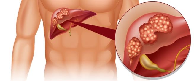 صورة سرطان الكبد وعلاجه , مواد مسرطنة تسبب سرطان الكبد