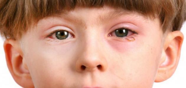 صورة اسباب تورم العين عند الاطفال , عين ابنك امانة