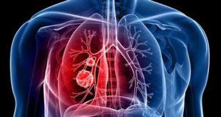 صورة علاج سرطان الرئة , التدخين يعرضك لسرطان الرئة