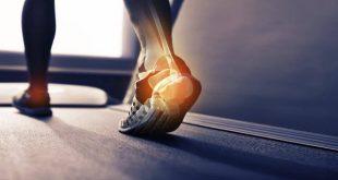 صورة علاج التهاب كعب القدم , تخلص من الامك المزعجة بالكعب