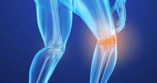 صورة علاج احتكاك الركبة بالاعشاب الطبيعية , كيف تعالج الم ركبتيك فى المنزل