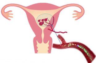 صورة علاج نزيف الرحم , مسببات النزف من الرحم و كيفية التعامل معها