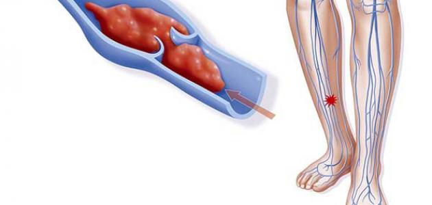 صورة علاج الجلطة في الرجل , علامات و اسباب تجاط القدم