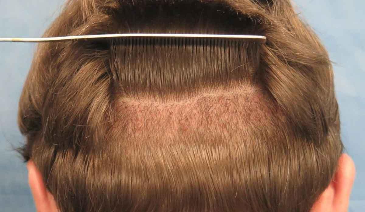 صورة تكاليف زراعة الشعر , اريد زراعة شعري باقل الاسعار