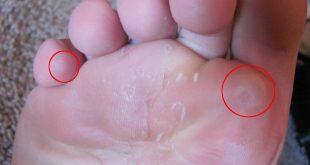 فطريات بين اصابع القدم , ظهور طبقة بيضاء علي رجلي