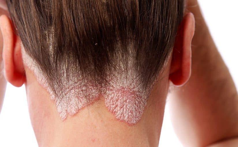 صورة علاج فروة الراس الملتهبة , اسباب و علاج التهاب فروه الراس