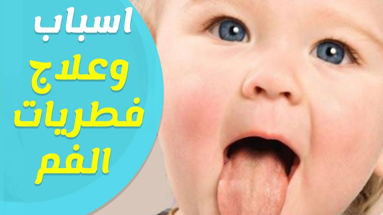 صورة علاج فطريات الفم للاطفال , وقاية من بكتريا وفطريات في فم الرضيع