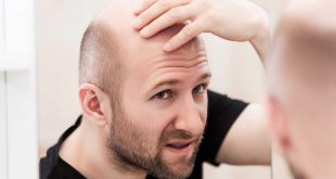 صورة اسباب تساقط الشعر وعلاجه , علاج سقوط شعري باستمرار