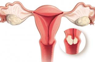 صورة اعراض سرطان فتحة المهبل , كيفية العلاج من الورم المهبلي