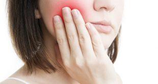 صورة علاج خراج الاسنان بالاعشاب , الطب البديل والام خراج الاسنان