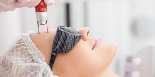 صورة فوائد الليزر لازالة الشعر , للشعر الزائد لماذا تختارين وسيلة الليزر