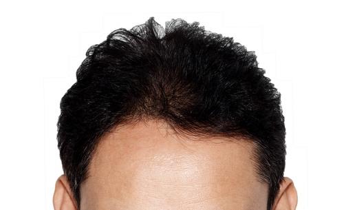 صورة حكم زراعة الشعر , ماذا عن حلاله و حرامه