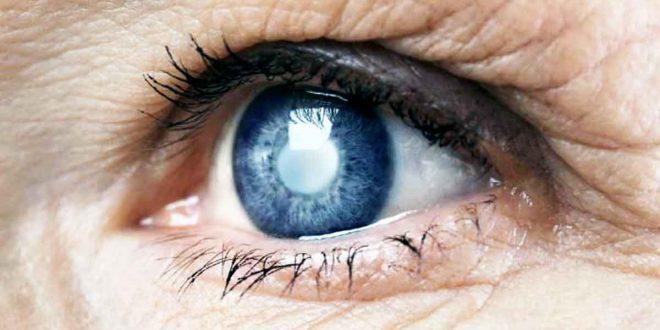 صورة علاج المياه البيضاء , ما هو الماء الابيض فى العين و علاجاته