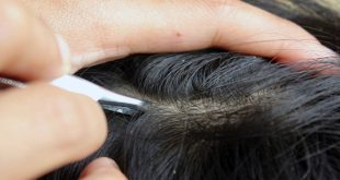 صورة علاج الصيبان في الشعر , اسهل طرق للقضاء على الصيبان