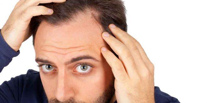 صورة تعليمات بعد زراعة الشعر , الممنوعات والضروريات بعد زراعة الشعر