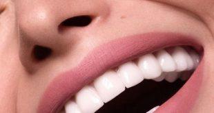 علاج صفار الاسنان , ارجعى بياض اسنانك بطريقة سهلة