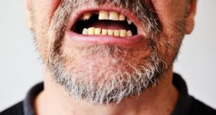 تفسير الاحلام سقوط الاسنان , تفسير وقوع الاسنان فى الاحلام