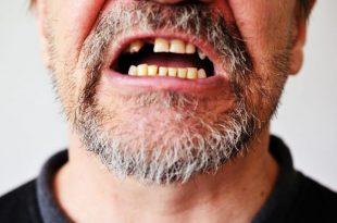 صورة تفسير الاحلام سقوط الاسنان , تفسير وقوع الاسنان فى الاحلام 6406 4 310x205