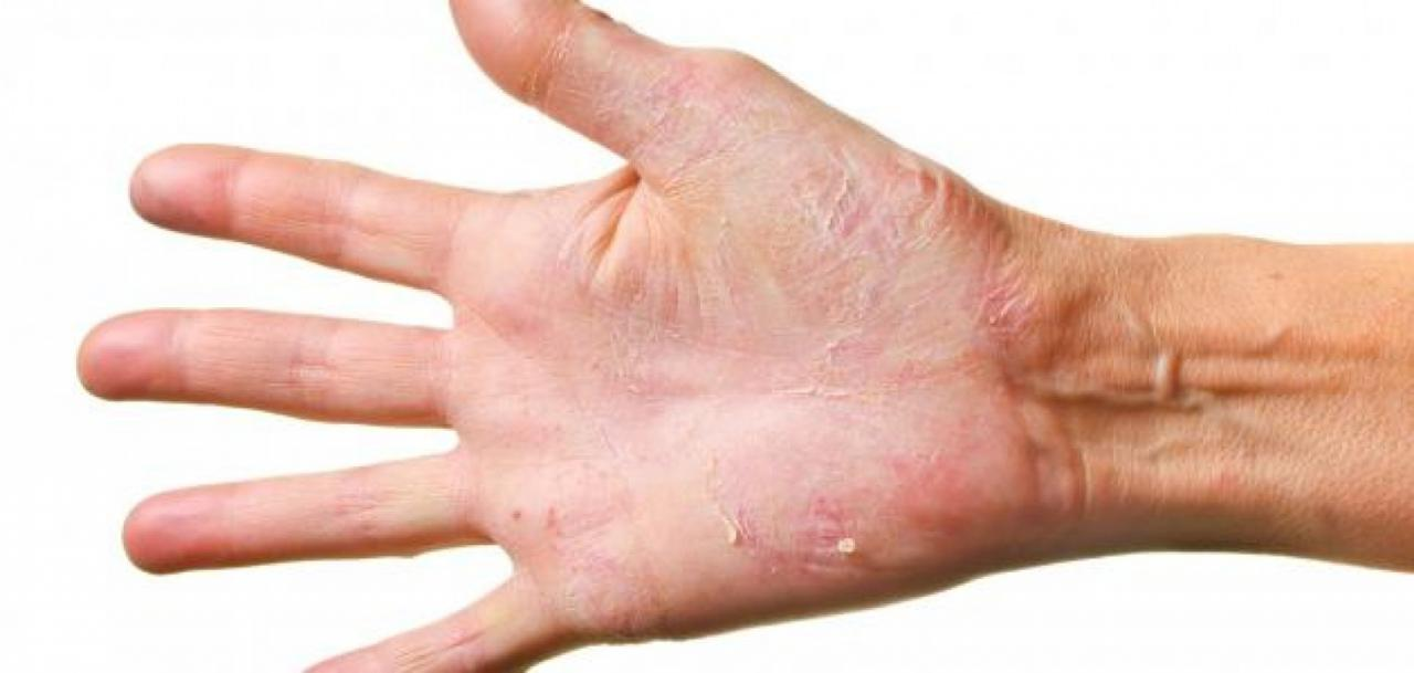 صورة علاج مرض الصدفية , اعراض مرض الصدفيه