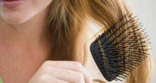 صورة تساقط الشعر وعلاجه , اسباب و علاجات تساقط الشعر