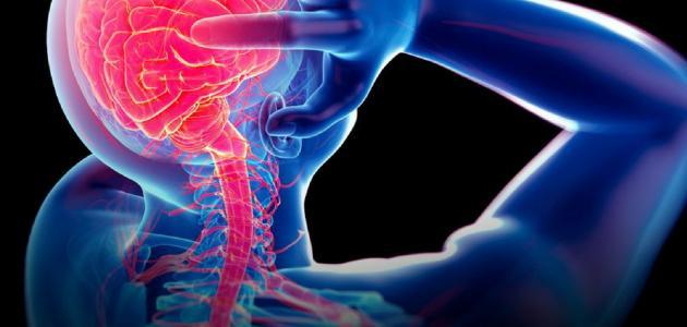 صورة اعراض مرض الصرع , حركات لا ارادية هل من اعراض اخرى