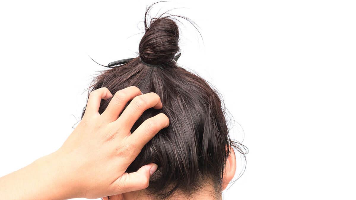 صورة اسباب حكة الشعر , الاكثر شيوعا من مسببات حكة الشعر