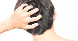 اسباب حكة الشعر , الاكثر شيوعا من مسببات حكة الشعر