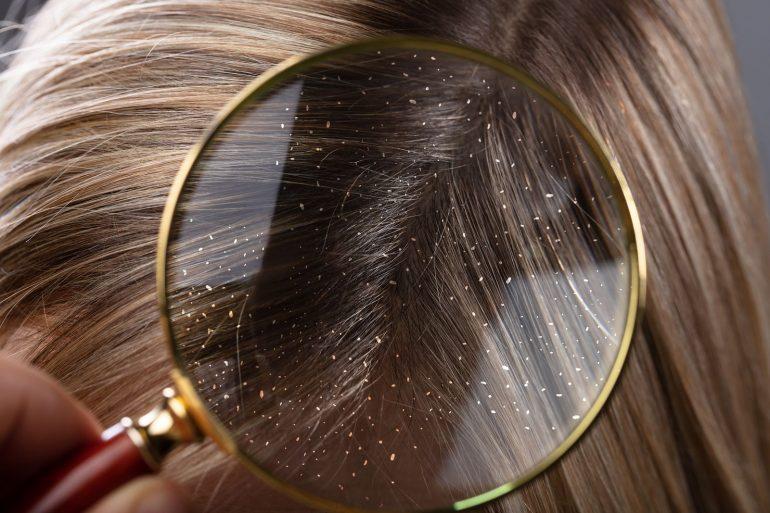 صورة للقضاء على القشره والحكه, ازاى نتخلص من قشرة الشعر بسهولة